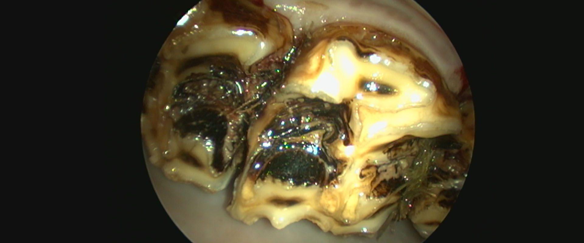 Lähikuva hevosen hampaasta - periferinen karies